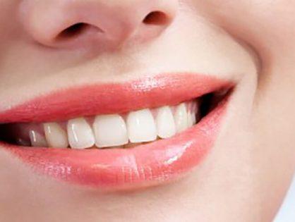 Tipos de implantes dentales. Preguntas frecuentes